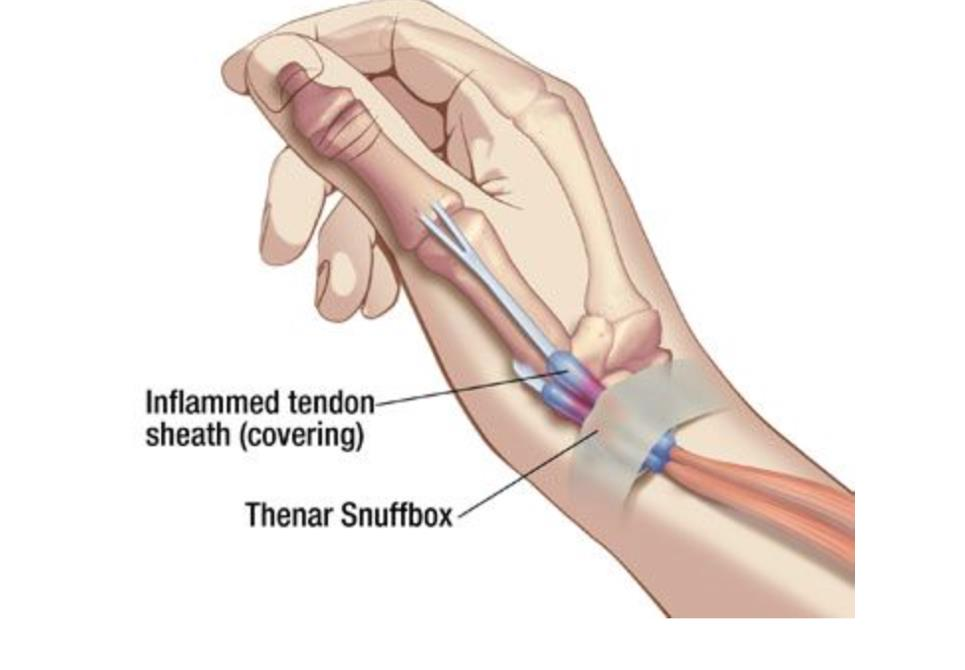 corticosteroid injection side effects